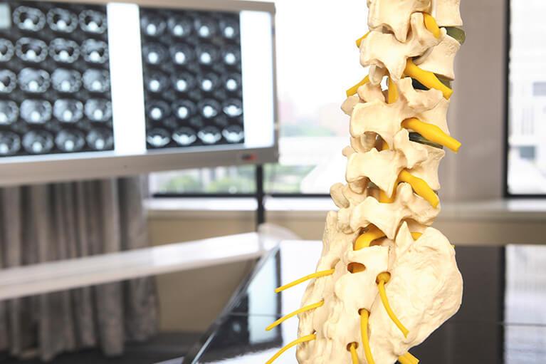 脊髄・脊椎外科外来